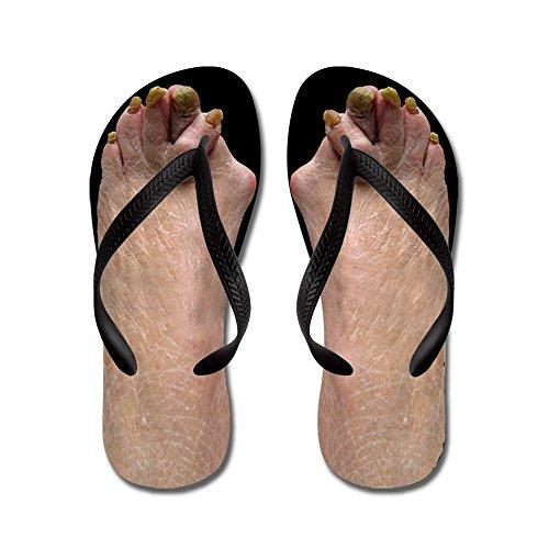 Cafepress Ugly Feet - Chanclas, Sandalias Thong Divertidas, Sandalias De Playa Negras