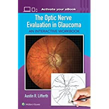 The Optic Nerve Evaluation in Glaucoma: An Interactive Workbook