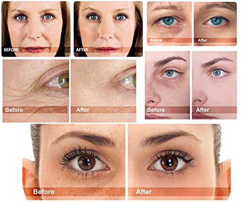 The Best Eye Serum 100% Natural Anti-aging for Wrinkles, Dark Circles, Puffiness, Eye Bags and Crow's Feet with Oligopeptides, Matrixyl 3000 Peptides + Micronized Collagen. Made in USA by MyM (Image #2)