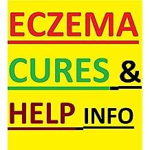 Eczema: Eczema Home Remedies, Eczema Cures, Eczema Diet, Eczema Lotions, Eczema Secrets: Disappointed With Your Skin inflammation?