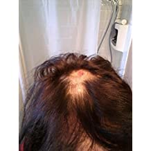 A Hairstylist's Approach to Winning the Head lice War.: What Really Works!