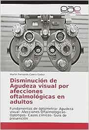 Disminución de Agudeza visual por afecciones oftalmológicas en adultos: Fundamentos de óptometria- Agudeza visual- Afecciones Oftalmológicas- Optotipos- Casos clínicos- Guía de prevención