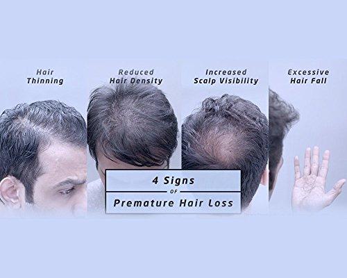 Livon Hair Gain Tonic, 150ml