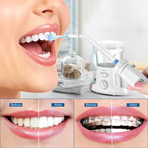 Homitt Water Flosser, FDA Approved Family Countertop Dental Oral Irrigator with 9 Multifunctional Tips, 10 Pressure Setting Professional Teeth Cleaner for Easy Dental Care by Homitt (Image #7)