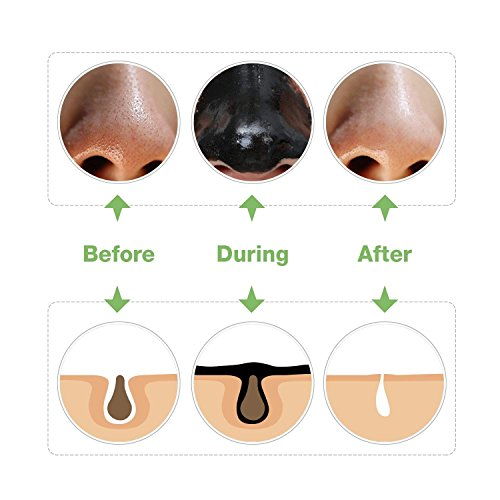 Diy Activated Charcoal Mask To Draw Out Deep Dwelling Pore: Black Mask Peel Off Mask Charcoal Mask Blackhead Remover