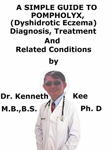 (A  Simple  Guide  To  Pompholyx, (Dyshidrotic Ezcema)  Diagnosis, Treatment  And  Related Conditions)