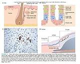 Robbins & Cotran Pathologic Basis of