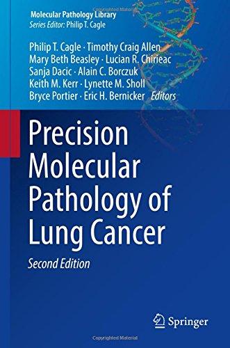Precision Molecular Pathology of Lung Cancer (Molecular Pathology Library)