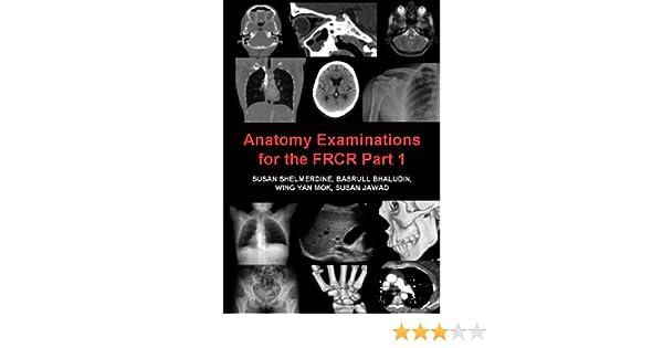 anatomy examinations for the frcr part 1 shelmerdine susan bhaludin basrull mok wing yan