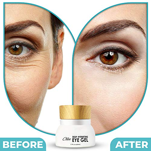 51lhx0lGGdL - Eye Cream For Dark Circles and Puffiness - Anti Aging Wrinkle Remover Eye Gel - Under Eyes Treatment for Men and Women