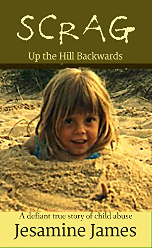 Scrag - Up The Hill Backwards: A defiant true story of child abuse by [James, Jesamine]