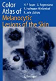 img - for Color Atlas of Melanocytic Lesions of the Skin book / textbook / text book