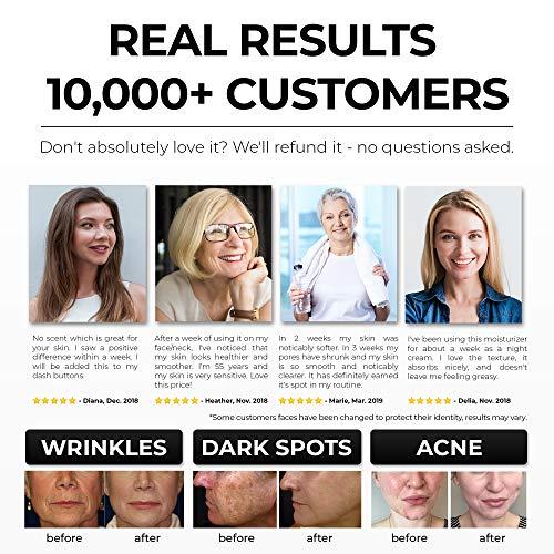 51lmN%2BqryyL - Rich Retinol Cream - Top Influencer - Organic & Vegan - Luxury Quality Moisturizer for Face & Eye Packed with Organic Retinol, Vitamin E, Jojoba Oil, Hyaluronic Acid, Shea Butter, Organic Aloe & More.