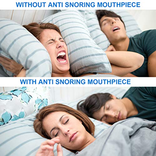 Anti Snoring Mouth Guard, Anti Snoring Devices Snore Solution Anti Snoring Mouthpiece for Sleep Aids Bruxism Snore Reduction Stop Snoring Devices Best Snoring Stopper Snoring Reducing Mouthpiece by Topffy (Image #2)
