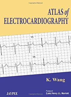 The ecg in acute mi an evidence based manual of reperfusion therapy customers who viewed this item also viewed fandeluxe Images