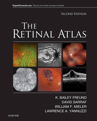 The Retinal Atlas, 2e