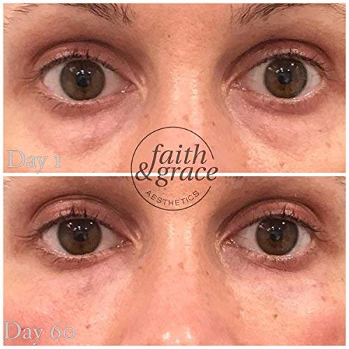 51lu2vJ RCL - Faith and Grace Anti Aging Eye Cream (MADE in USA) BEST for Improving Dark Circles, Fine Lines and Puffiness. Reduce Breakdown of Collagen, Soothe and Rejuvenate for a Healthy Youthful Appearance