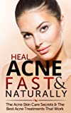 Heal Acne Fast & Naturally: Acne Skin Care Secrets & The Best Acne Treatments That Work: (Dietary Cure for Acne, Acne Vulgaris, Acne Prevention, Natural Skincare, Acne Skincare)