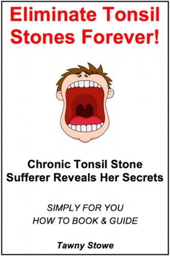 Eliminate Tonsil Stones Forever!