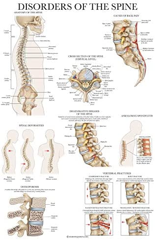 Disorders of the Spine Anatomy Poster - Laminated Spinal Disorders Anatomical Chart - 18 x 27