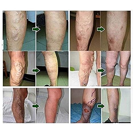 paux reviews în varicose tratamentul venelor varicoase în laserul kherson