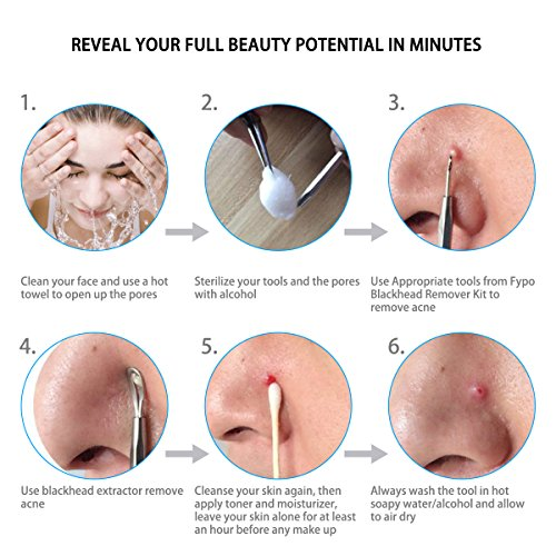 amazon com: blackhead remover kit 7 pcs, fypo pimple popper tools for  whitehead blemish acne comedone pimple with stainless steel: beauty