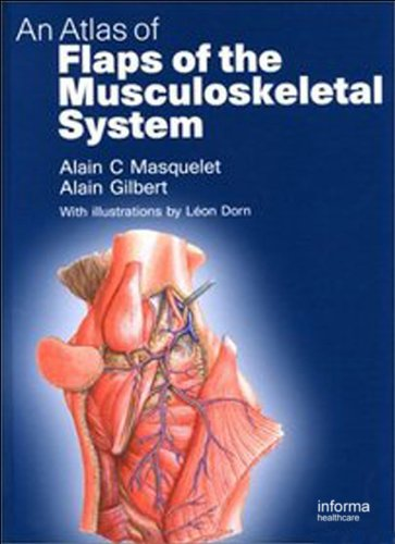 An Atlas of Flaps of the Musculoskeletal System Pdf