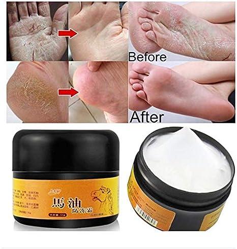 Pywee Aceite de Caballo Crema de Manos y pies Caballo Anti-Rozaduras Reparador de la Piel Hidratante para pies ásperos, Secos y agrietados