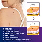 NOVOME Skin Tag Remover & Wart Remover - Quickly