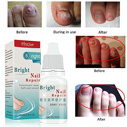 Bacteria and Fungus Nail Fungus Treatment Cream Onychomycosis Paronychia Anti Fungal Nail Infection 10m by AdvancedShop by AdvancedShop (Image #5)