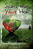 Scars That Heal, Shannon Pope, 1478358297