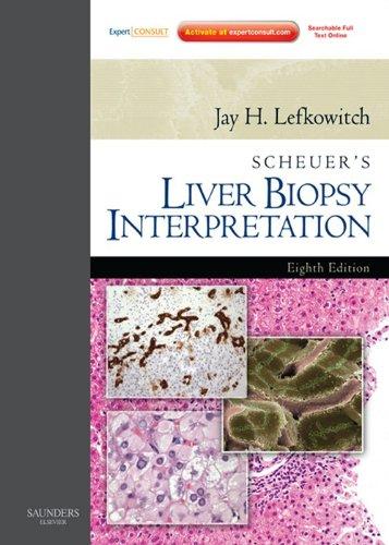 SPEC -Scheuer's Liver Biopsy Interpretatiok E-Book 12 Month Subscription: Expert Consult: Online and -