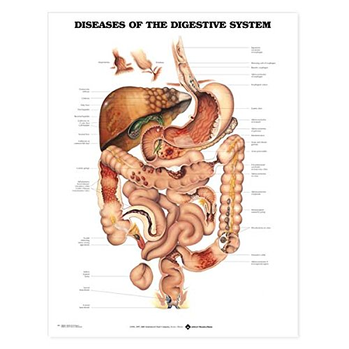 - Diseases of the Digestive System Anatomical Chart Unmounted-9861PU