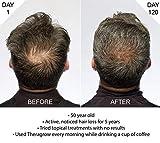Theradome EVO LH40 - Medical Grade Laser Hair