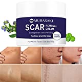 Scar cream,Scar removal,Scar treatment, Scar