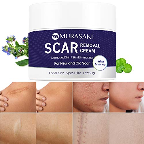 Scar cream,Scar removal,Scar treatment, Scar Removal Cream- stretch marks remover cream for All Skin Types, New and Old…