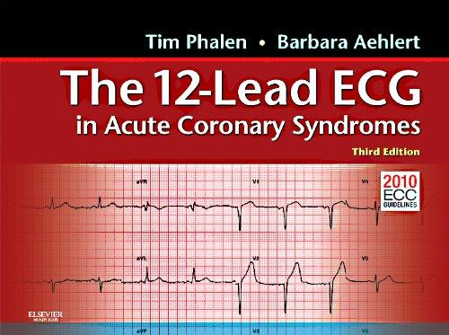 The 12-Lead ECG in Acute Coronary Syndromes: Pocket Reference for the 12-Lead ECG in Acute Coronary Syndromes
