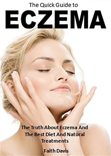 The Quick Guide to Eczema: The Truth About Eczema And The Best Diet And Natural Treatments
