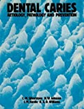 Dental Caries Aetiology, Pathology and Prevention by Leon M. Silverstone (1981-06-01)