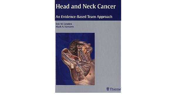 Head and neck cancer: an evidence-based team approach