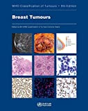 DEFAULT_SET: Breast Tumours: WHO Classification