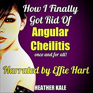 How I Finally Got Rid of Angular Cheilitis Once and for All! Audiobook