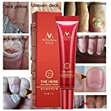Botrong Fungal Nail Treatment Essence Nail and Foot Fungus Removal Feet Care Gel Anti Infection, 30ml