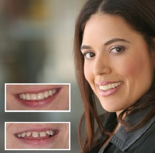 Imako Cosmetic Teeth for Women 1 Pack. (Small, Bleached) Uppers Only- Arrives Flat. Fit at Home Do it Yourself Smile Makeover! by Imako (Image #8)