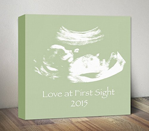 Ultrasound Image Canvas Sonogram Art Print Baby Shower Gift Gender Reveal Artwork