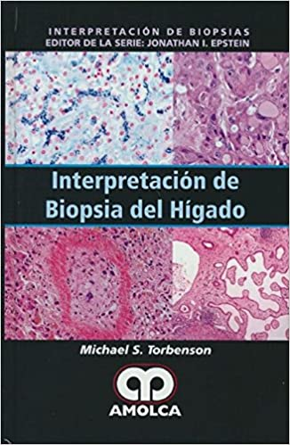 Interpretación de Biopsia del Hígado: Amazon.es: Michael ...