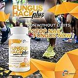 Fungus Hack Plus Probiotic Internal Fungus Fighter