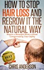 How to Stop Hair Loss and Regrow It the Natural Way: Regain a Beautiful Mane without Compromising Your Safety