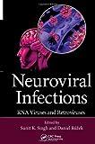 Neuroviral Infections, , 1466567201