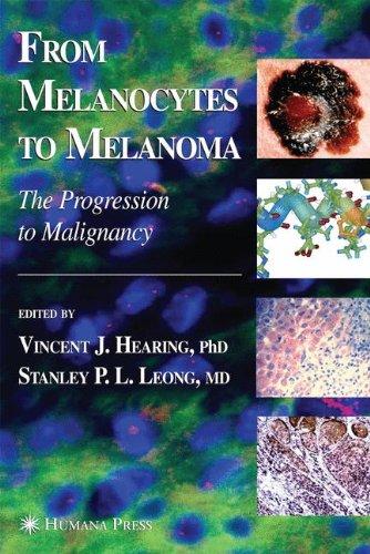 from-melanocytes-to-melanoma-the-progression-to-malignancy